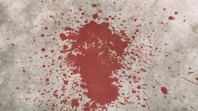 بقع دم